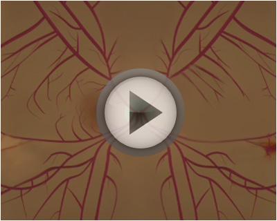 *Video:test